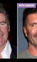 Simon Cowell, înainte și după operațiile estetice, conform unei simulări computerizate.
