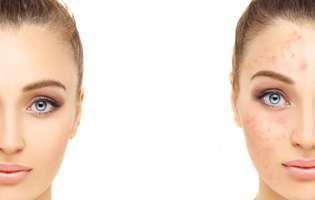 acneea-cosmetica