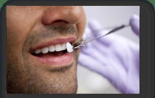 cum se întrețin fațetele dentare