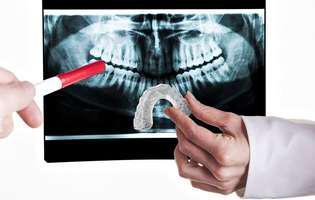 stresul continuu si dintii