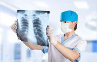 Fibroza pulmonară idiopatică
