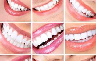 Programează-te să zâmbești... cu toți dinții