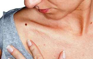 Greșeli care pun în pericol pielea cu alunițe