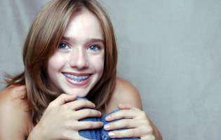 Care este vârsta ideală pentru a pune aparatul dentar