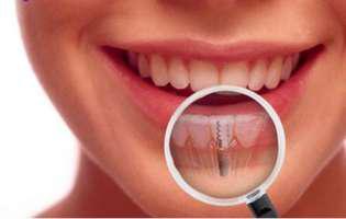 Implant sau punte dentară - tu ce alegi?