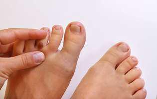 Cancerul de piele apare unde nu te aștepți
