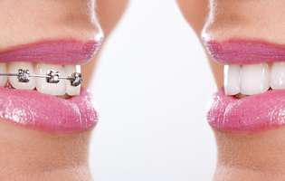 Ce trebuie să știi înainte să-ți pui aparat dentar