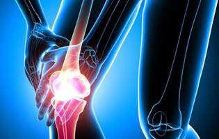 artrita reumatoida juvenila. radiografie la genunchi