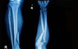 Genu valgum (picioare în X)