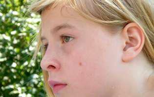 Fata cu alunițe