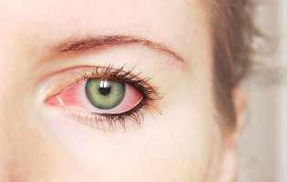 ochi roșu