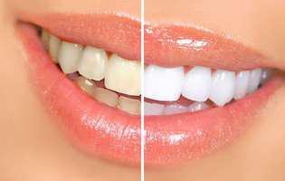 Cum îți menții dinții albi după albire