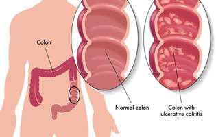 O schema prezintă cum arată colonul înainte și după ce a fost afectat de colita ulcerativă