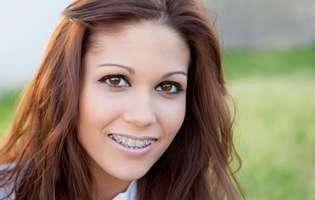 aparatul dentar la adulți