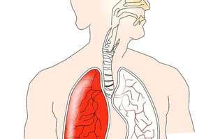 Cancerul la plămâni. Sistemul respirator uman