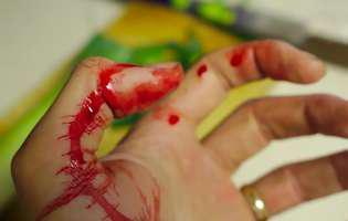 Hemofilie. Tăietură la mână