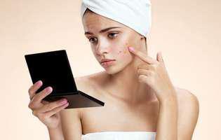 Cu ce trec semnele post-acnee e o întrebare la care medicina naturistă are răspunsul: cu albuș de ou, oțet de mere sau alte remedii naturale la îndemână. Imagine cu o femeie care își examinează în oglindă cicatricile post-acnee