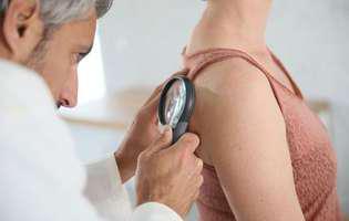 Keratoza seboreică este o afecțiune dermatologică necancerigenă. Imagine cu femeie aflată la consultație dermatologică pentru stabilirea diagnosticului de keratoză seboreică