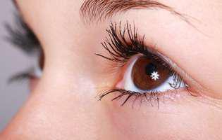 Rozaceea oculară este o afecțiune oculară care poate apărea concomitent cu rozaceea dermatologică sau independent de aceasta. Imagine cu ochii unei persoane afectate de rozaceea oculară