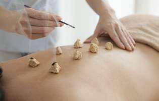 Moxibustia, tratamentul asiatic ciudat care alină durerea