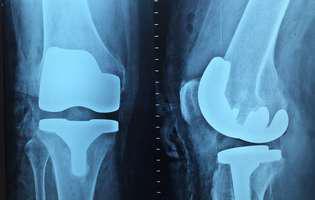 Artrita septică este o afecțiune care poate produce grave complicații și care necesită tratament cât mai din timp. Imagine cu articulații afectate de artrita septică