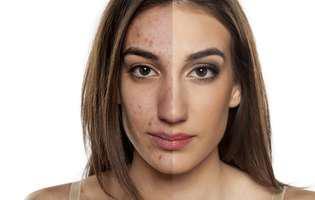Mituri despre acnee