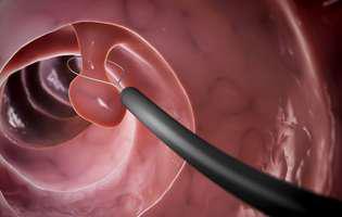 Acest test online îți spune dacă ai predispoziție să faci cancer de colon
