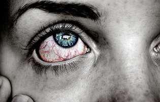 Hemoragia subconjunctivală este o afecțiune fără consecințe grave. Imagine cu persoană care suferă de hemoragie subconjunctivală