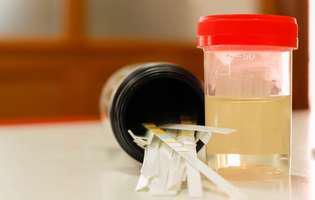 Ce înseamnă dacă urinezi cu sânge