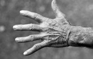 Boala Still a adultului reprezintă un tip rar de artrită inflamatorie care se manifestă prin febră, erupție cutanată și dureri articulare. Imagine cu mâna unei persoane care suferă de această afecțiune