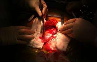 Efuziunea pericardică este o afecțiune care constă în acumularea de fluid în exces în pericard (învelișul exterior, format din două straturi, al inimii). Imagine cu intervenție pe cord