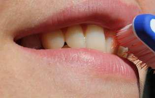 Glosodinie - afecțiune care se referă la senzația de arsură cronică în gură ce poate afecta limba, gingiile, buzele și care poate fi intensă. Imagine cu gura unei persoane care suferă de această afecțiune