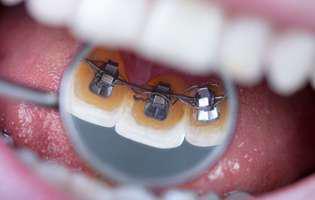 Aparatul dentar tratează