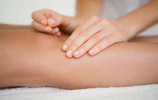 Acupunctura, tratamentul alternativ al gonartrozei