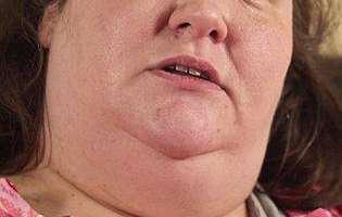 femeie cantareste 300 kg