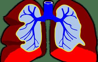 Fibroza chistică reprezintă o afecțiune ereditară care conduce la deteriorarea plămânilor, sistemului digestiv și a altor organe din corp. Imagine cu plămânii umani