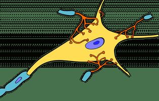 Adrenomieloneuropatie - este un tip de afecțiune ereditară care conduce la deteriorarea membranei (stratul de mielină) care acoperă celulele nervoase din creier. Imagine cu celula nervoasă