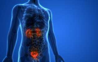cancerul de vezică urinară