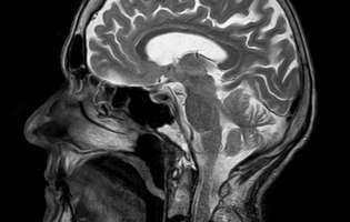 Sindromul opsoclonus-mioclonus este o formă de sindrom paraneoplazic (un tip de afecțiuni rar întâlnite care apar la persoanele care suferă de cancer), dar poate apărea și în urma unei infecții virale sau bacteriene. Acesta se datorează unei funcționări anormale a cerebelului sau a conexiunilor acestuia. Imagine cu creierul uman