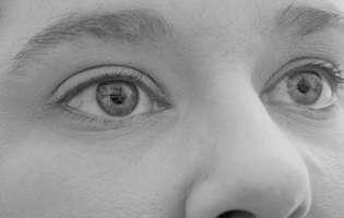 Cancerul foselor nazale este untip de cancer care apare în camerele umplute cu aer din zona nasului numite fose nazale. Imagine cu persoană care suferă de această afecțiune