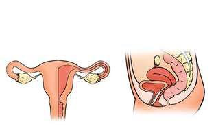 Cancerul uterin este un tip de cancer care apare la nivelul uterului. Uterul reprezintă organul în formă de pară din zona pelviană unde se dezvoltă fătul.Imagine cu uterul uman