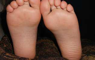 Rabdomiosarcomul la copii este un tip de tumoră de țesut moale care apare în celulele mezenchimale, care sunt celule imature care în mod normal formează musculatura, respectiv mușchii striați. Imagine cu picioarele unui copil care suferă de această afecțiune