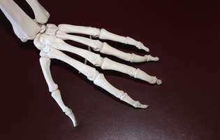 artrita remedii