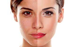 Principalele cauze care duc la hiperpigmentarea pielii. Femeie care are pete pe o jumătate din față. Cealalată jumătate este curată