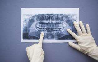 radiografia dentară