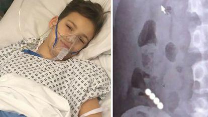 A inghitit patru magneti si a ajuns la spital in pericol de moarte