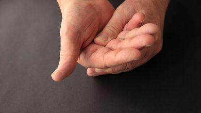 Sindromul-de-canal-carpian-amorțeală-și-furnicături-în-palmă