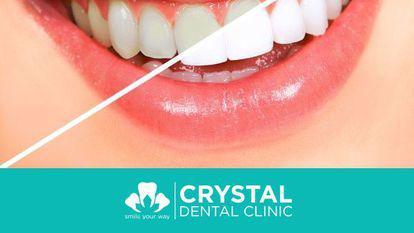 (P) 5 mituri despre albirea dinților, în cabinetele stomatologice