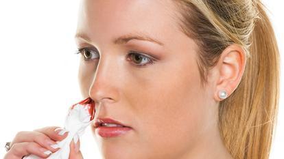 hemoragia nazală cauze