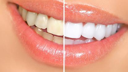 Se mai pot albi dintii dupa implantul dentar? Daca da, cum?